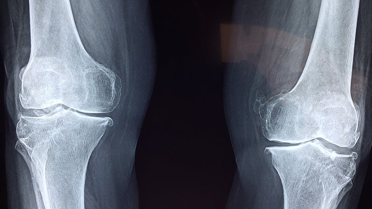 X-ray of two knee joints