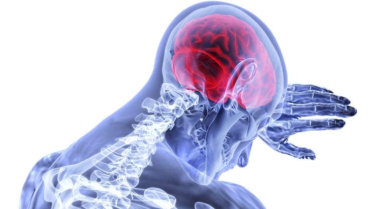 Internal view of stroke