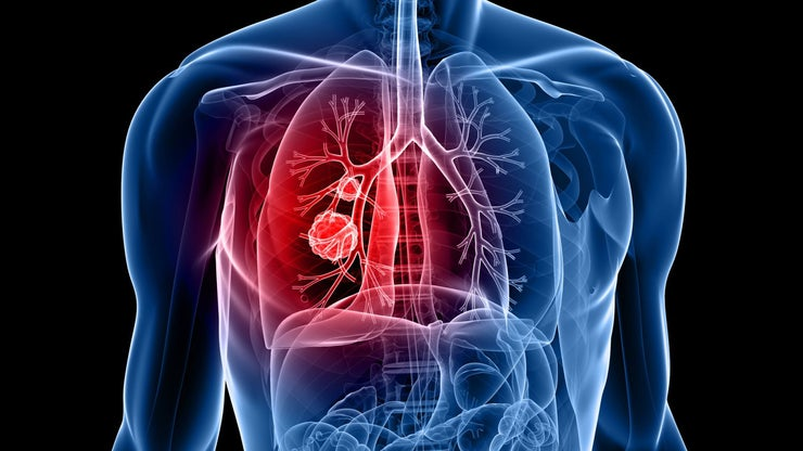 Lung Cancer 94463987